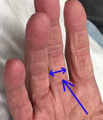 gamla enheter fingerbredd